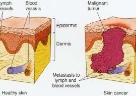 dermatologist in pune